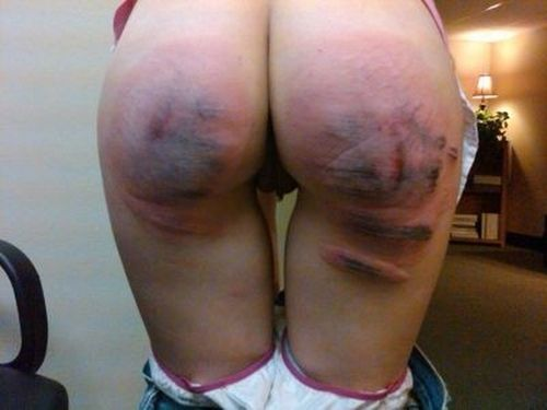 Spanked and bruised