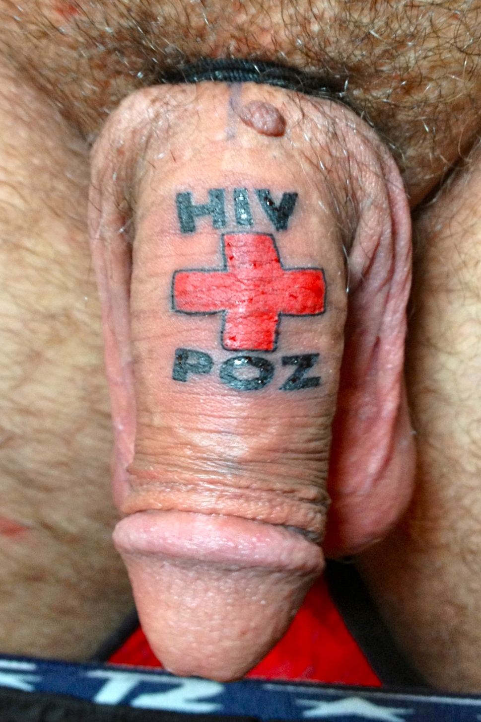 Aids on a penis