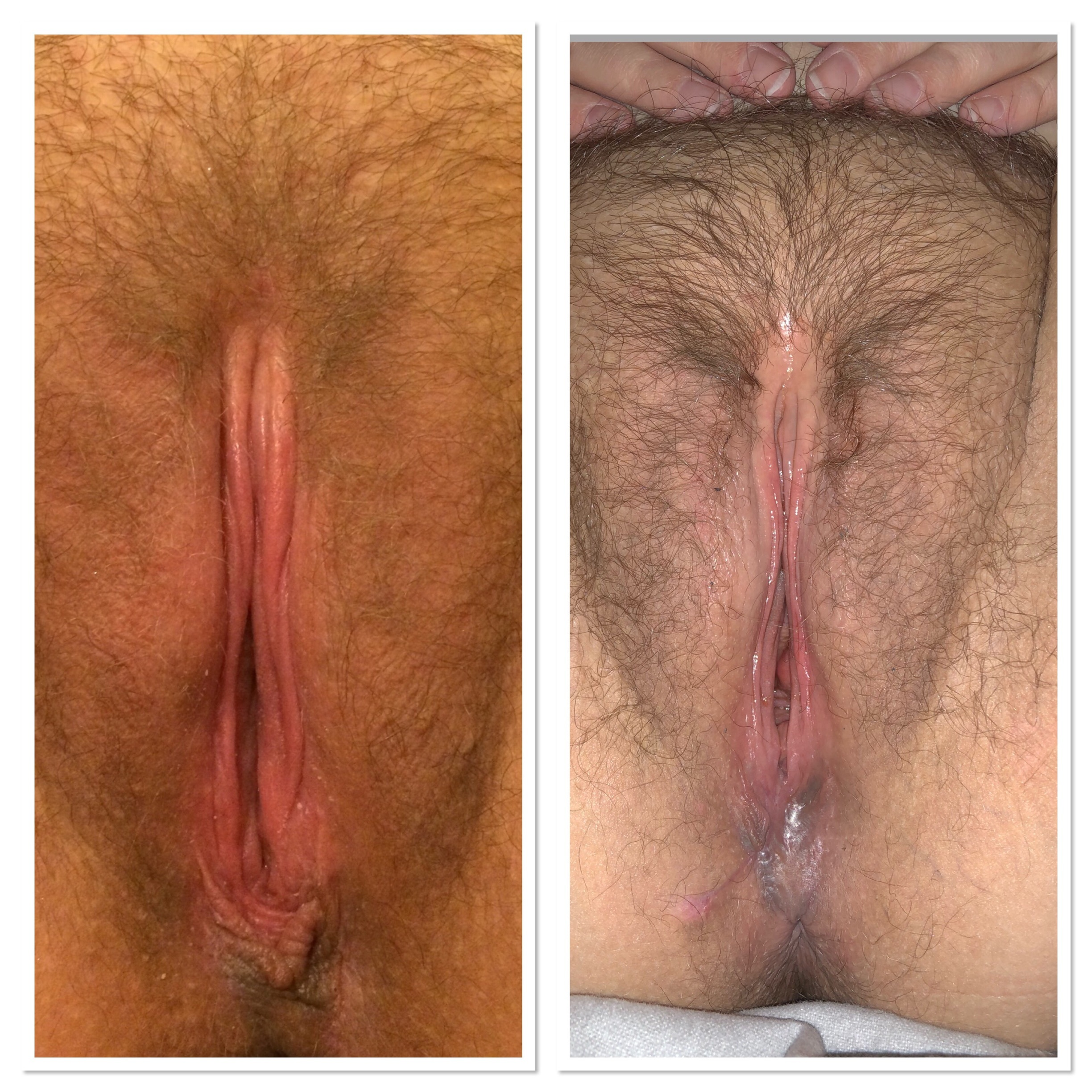 sexually-aroused-clitoris-before-and-after
