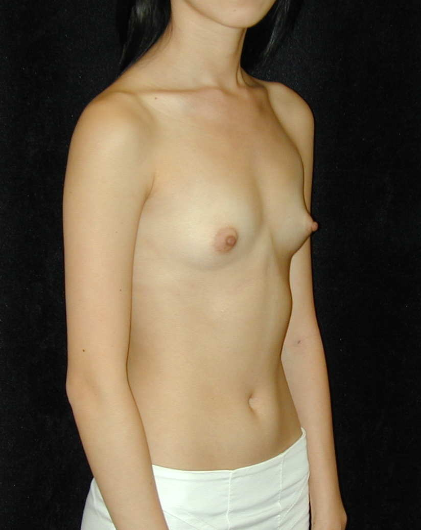 Unequal Breast Size Home Remedies