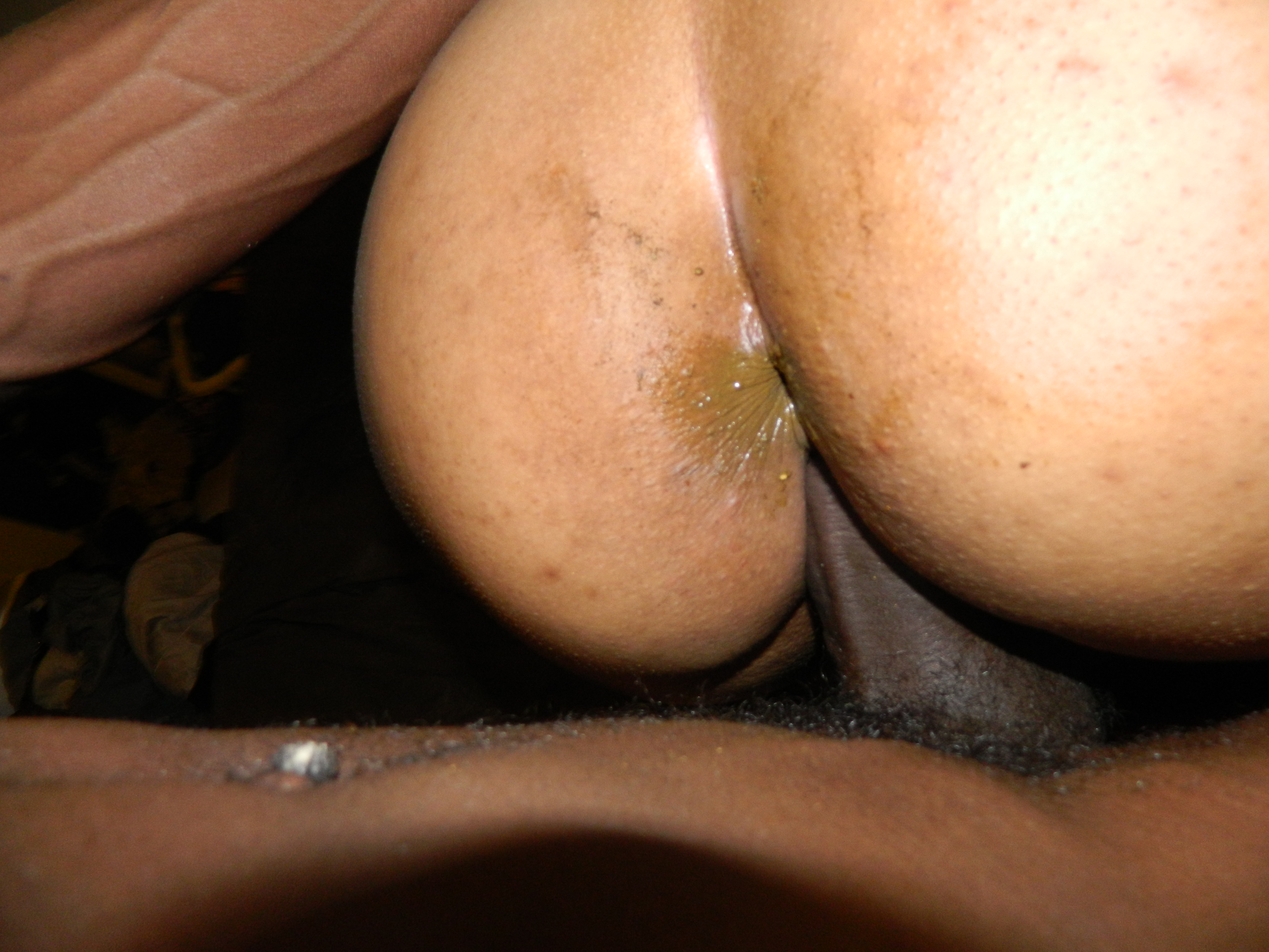 Very raunchy very dirty anal young — 13