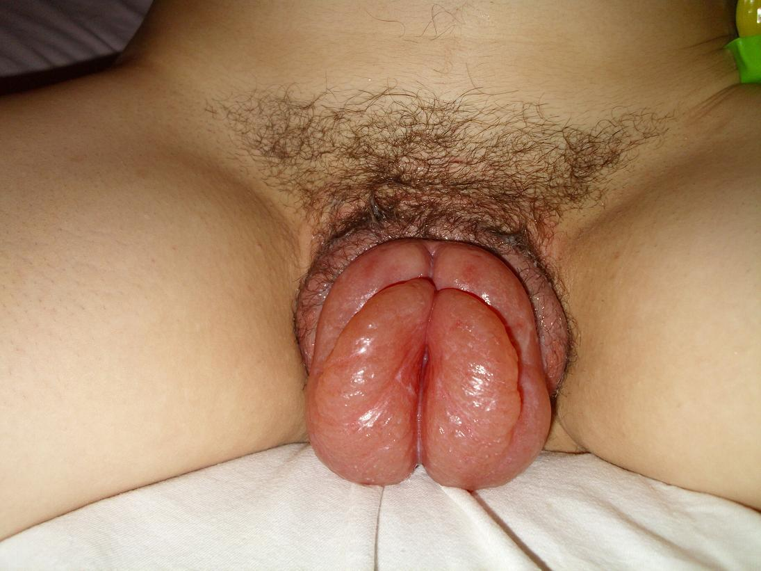 Biggest Pumped Pussy Ever - ... Vagina pumpe porn ...