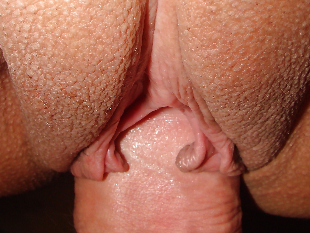 Hairy mature wife exposed