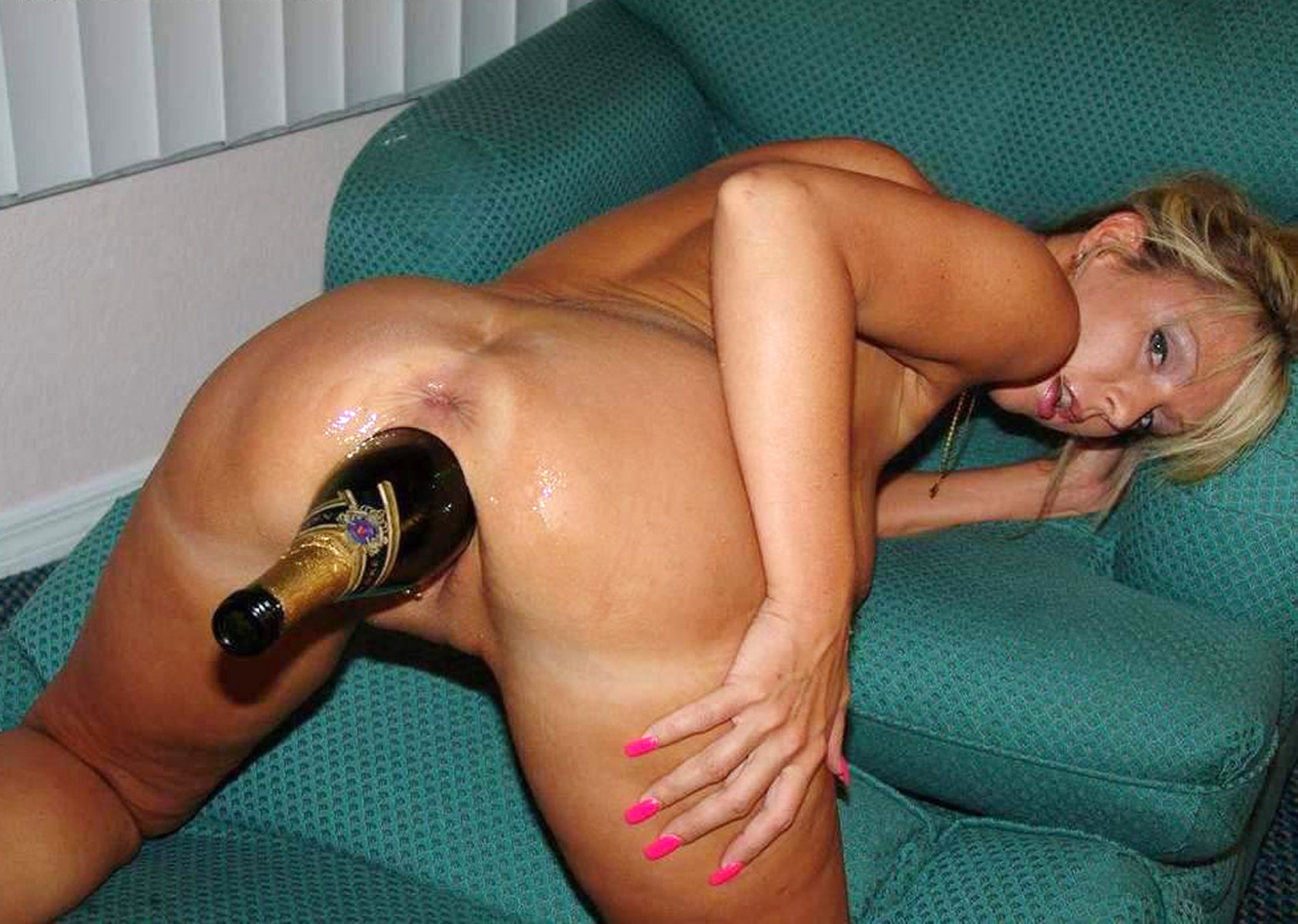 Big bottle anal prolapse