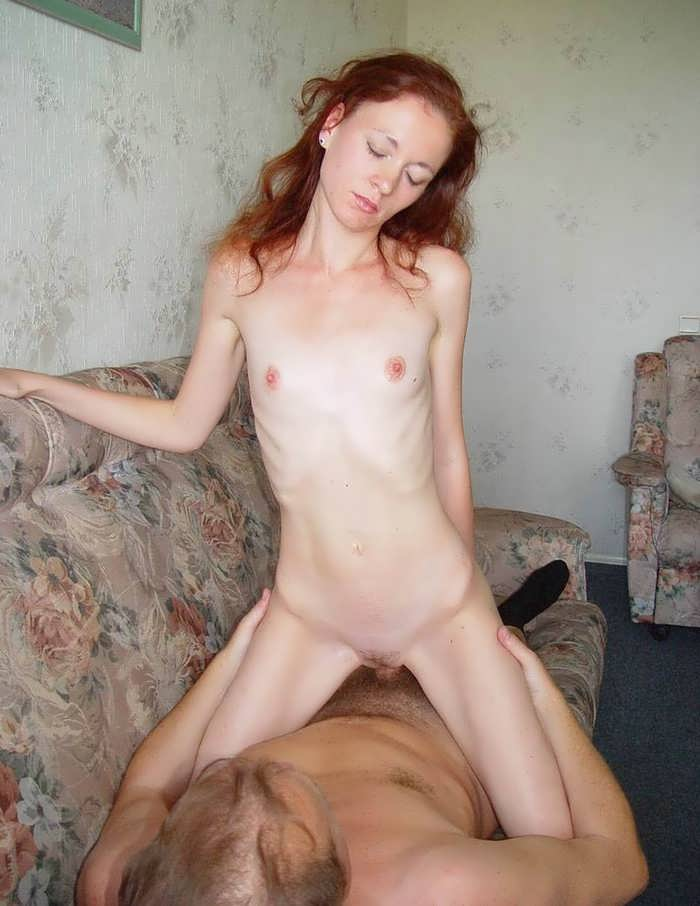 Girl free anorexia Sexy
