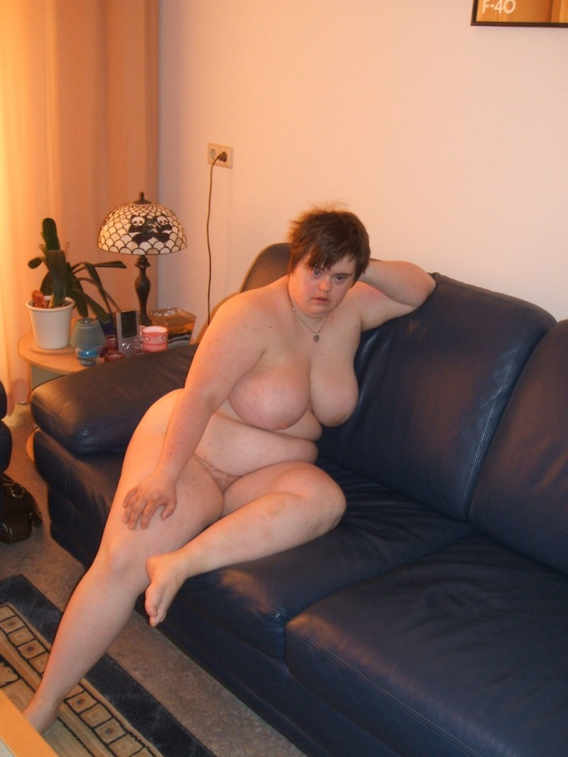 Nude girl Down syndrome