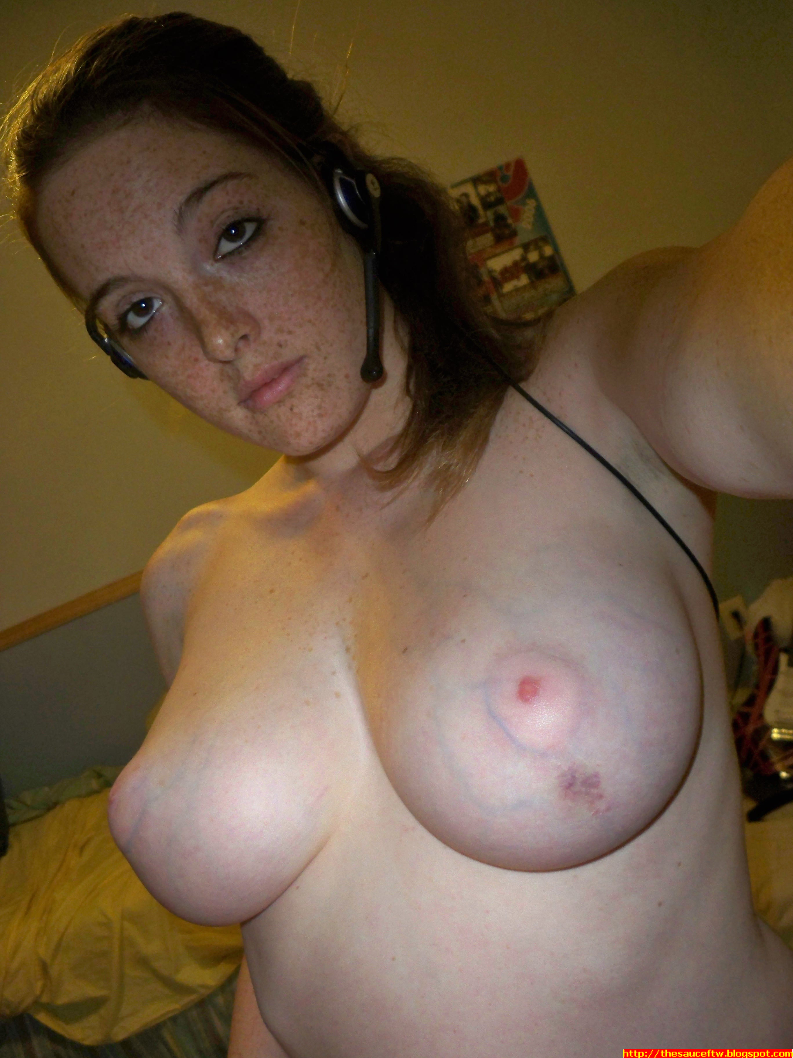 Freckle nude pics
