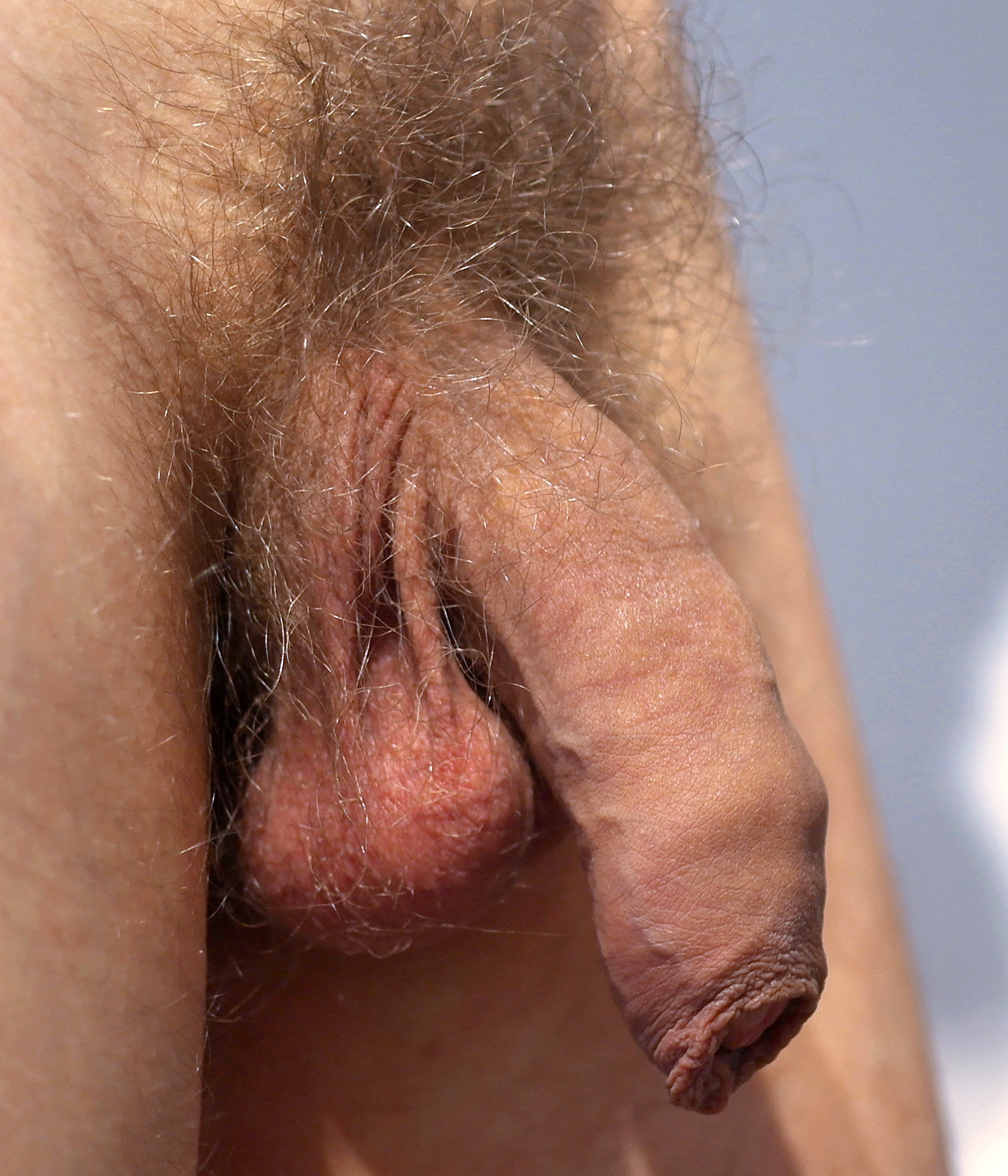 naked-male-growing-giant-foreskin-blog